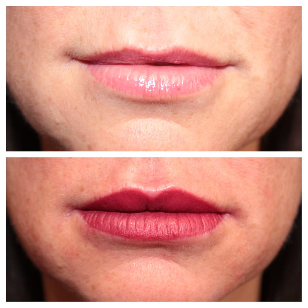 Full permanent lip color immediately after procedure | Yelp