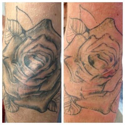 Hindsight tattoo removal fjernelse af tatoveringer for Tattoo removal milwaukee