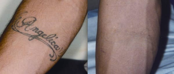 Medlite C6 Laser Tattoo Removal | Yelp