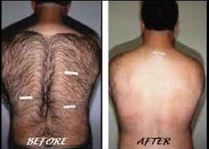 Body Hair Removal For Men | Short Hairstyle 2013