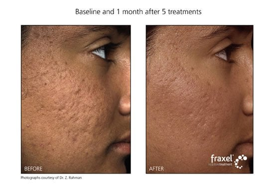 Before & After Fraxel laser treatments for acne scar