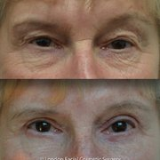 Blepharoplasty/ Eyelid Surgery: Upper, Lower, Fat transfer & Skin rejuvenation