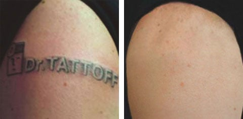 Remove Tatto on Tattoo Removal   Before And After   Yelp