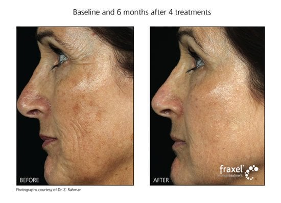 Before Amp After Fraxel Laser Treatments For Periorbital