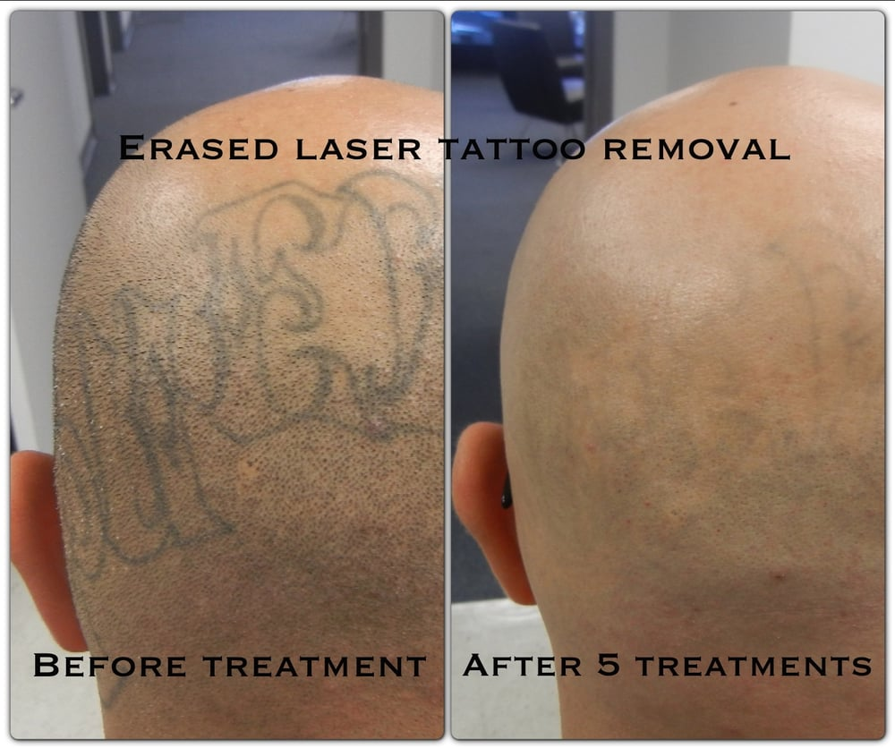 Evanesco Tattoo Removal Cream Review ~ natural tattoo removal reviews