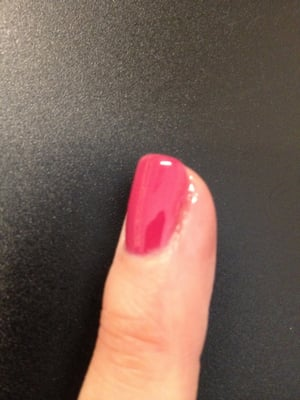 must be infected) finger after gel manicure on 2/20/2013. :o( | Yelp