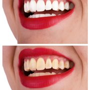 Diamond Smiles Teeth Whitening, Norwich, Norfolk
