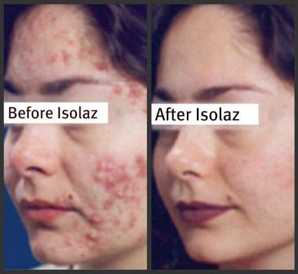 Clear Proof Acne System Catalog Mary Kay Percetakano8