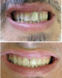 Patient's smile before and after root canals, dental crowns and porcelain veneers